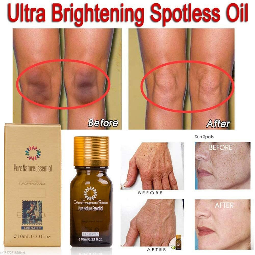 Ultra Brightening Spotless Oil Dark Spot Removal Natural Pure Oil Skin Care 10ml 2