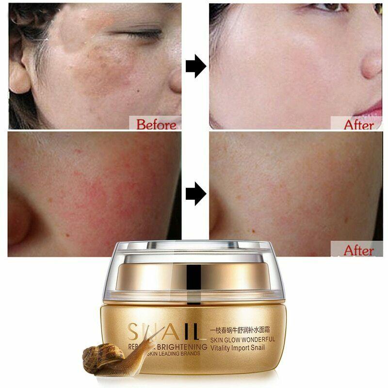 Snail Essence Nature Cream Face Skin Care Serum Anti Wrinkles Acne Whitening 1