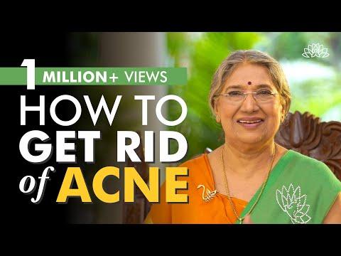DIY Remedies for acne | Natural Beauty | Dr. Hansaji Yogendra 1
